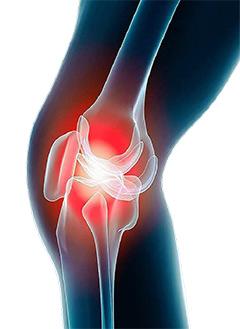 arthrose et inflammation articulaire