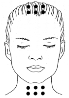 points d'acupuncture tenseurs du visage
