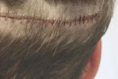 Comment faire repousser les cheveux sur une cicatrice