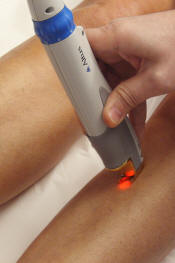 épilation definitive laser
