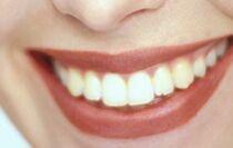 sourire et dents blanches