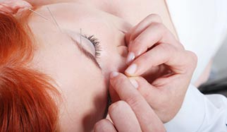 acupuncture du visage