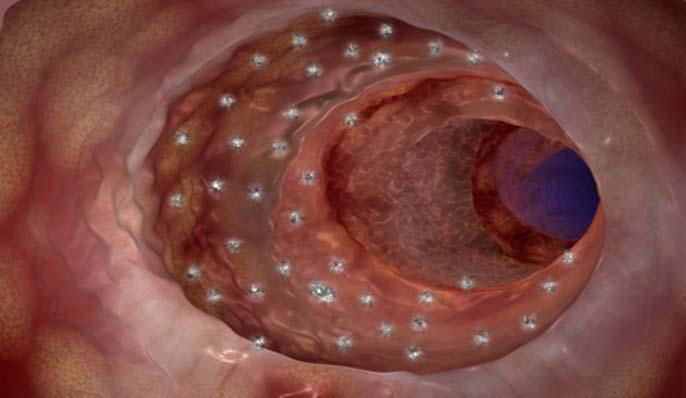 intestin microporeux