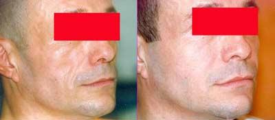 photo lipofilling homme avant-après